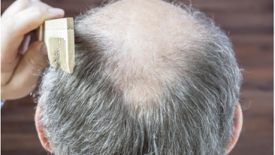 Photo of Top Hair Thinning Solutions