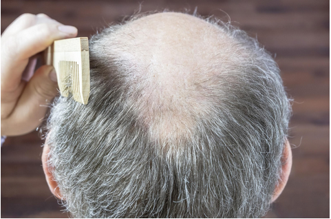 Hair Thinning Solutions