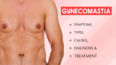 Photo of Here's How to Get Rid of Gynecomastia